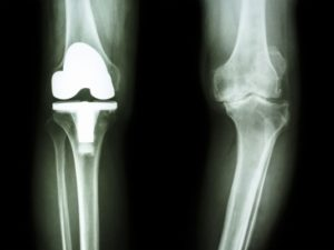 Regenerative Orthopedics and Knee Replacement